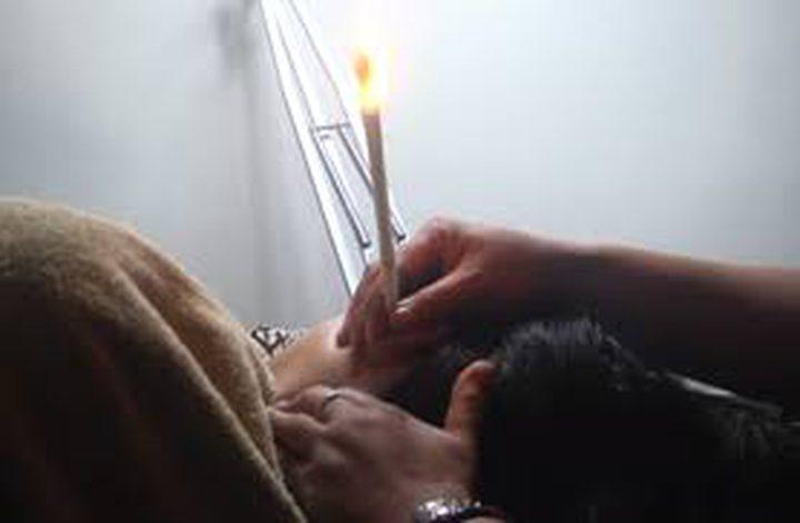 الشمع الاندونيسي طريقة لتنظيف الأذن!