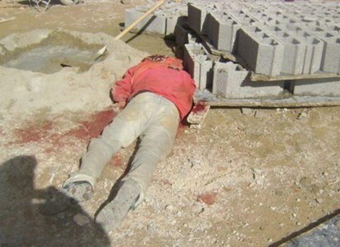 اصابة عامل في الطيرة