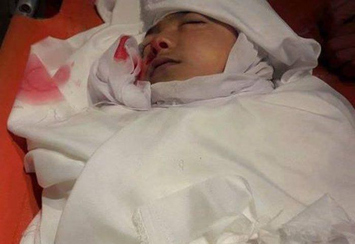 مصرع طفل نتيجة سقوط حجر عليه