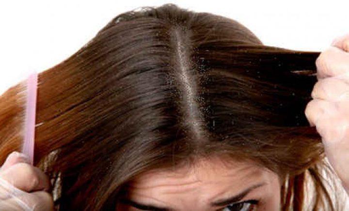 علاج إلتهابات فروة الرأس بطرق طبيعية