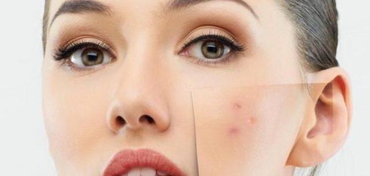 خلطات لعلاج بقع الوجه وإزالتها