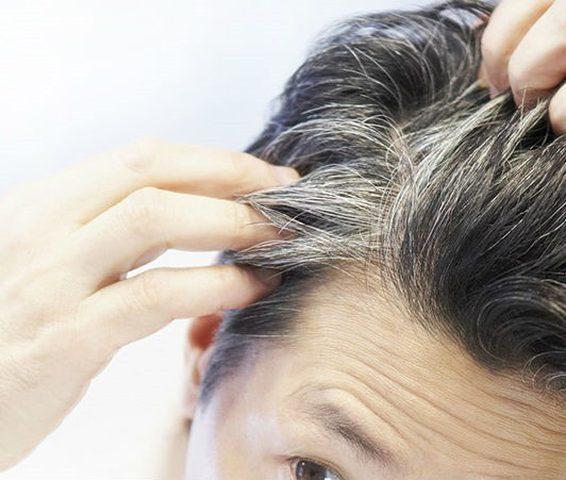 عادات سيئة تؤدي لظهور الشعر الأبيض