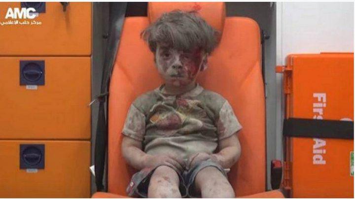 اتذكرون الطفل السوري عمران... هذا حاله اليوم (صور)