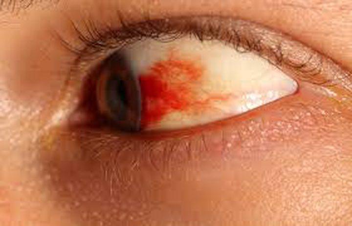 ما هي جلطة العين وما أعراضها؟