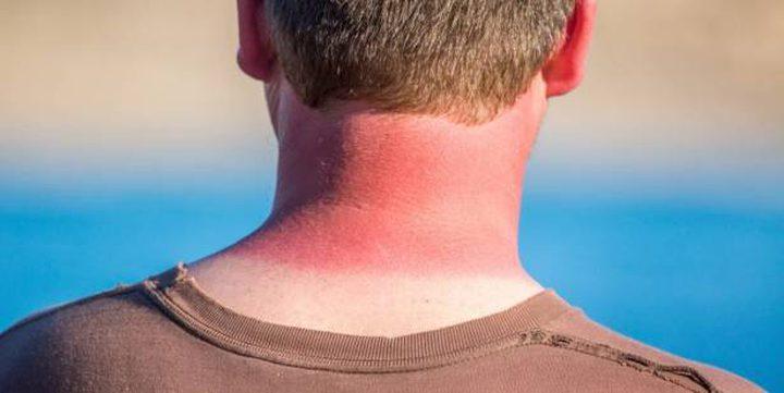 10 نصائح لعلاج حروق الشمس في فصل الصيف