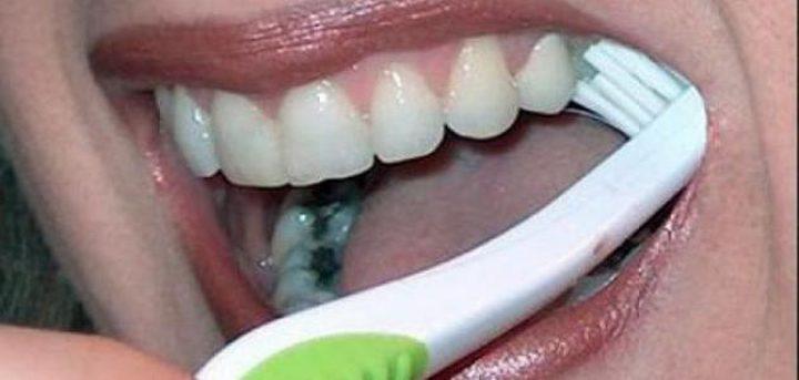 (بالفيديو)طريقة لإزالة تسوس الأسنان نهائيًا في المنزل