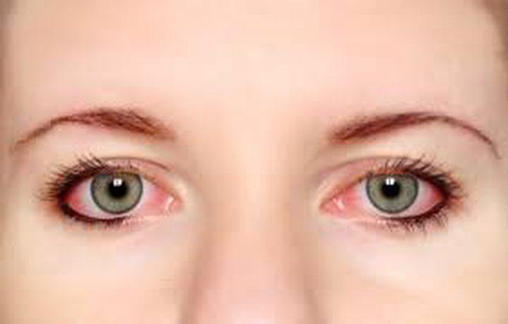 كيف نستطيع حماية العيون في الصيف؟