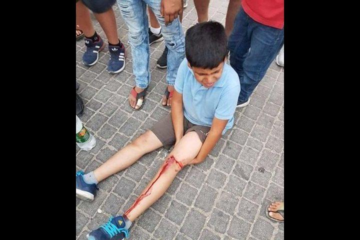 سلوان: الأهالي يطالبون شرطة الإحتلال بالتحقيق بدهس أبنائهم