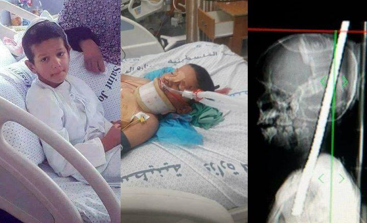 """قضيبٌ حديدي يخترق رأس طفل وصولاً لجسده دون أن يقتله.. التفاصيل الكاملة """"بالصور"""""""