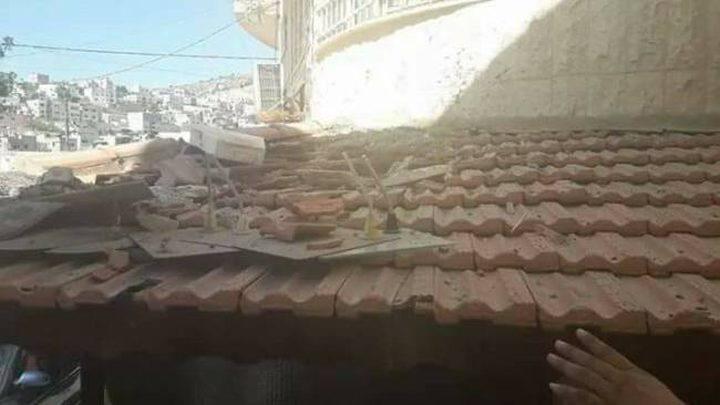 إصابة مواطنة جراء سقوط حجارة بناء عليها