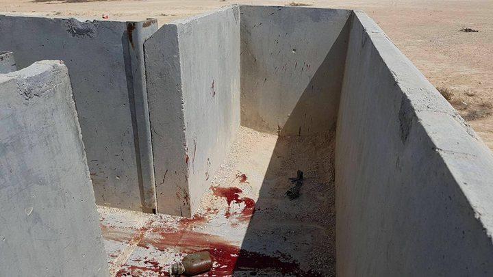 إصابة جنديين إسرائيليين احدهما بحالة خطيرة بانفجار قنبلة (صور)