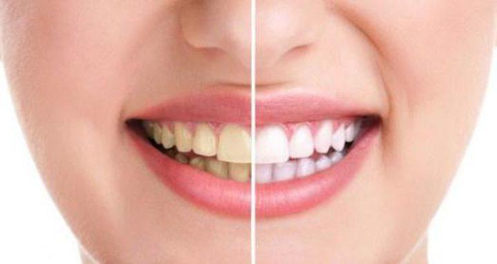 أطعمة ومشروبات مسؤولة عن اصفرار الأسنان..تعرف عليها