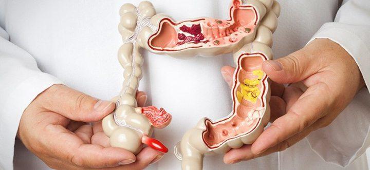 كيف يمكنك خفض خطر الإصابة بسرطان القولون؟
