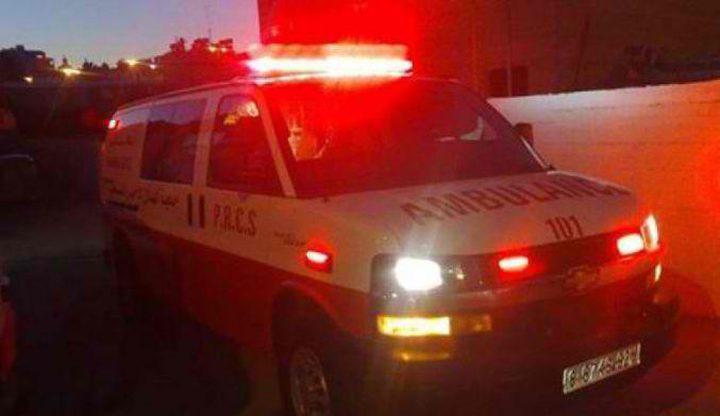 إصابة مواطنة بحريق في أريحا