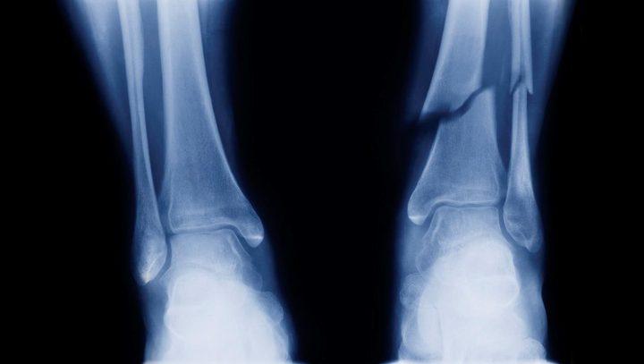نسيج عظمي صناعي من النباتات هل ترميم العظام أصبح أسهل ؟