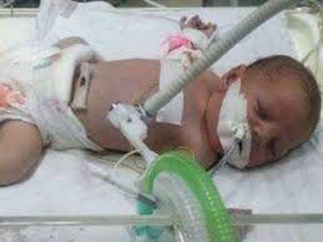 الرئيس يتكفل بعلاج طفل من غزة