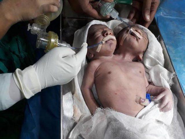 ولادة توامين ملتصقين مع راسين منفصلين وجذع واحد في الهند