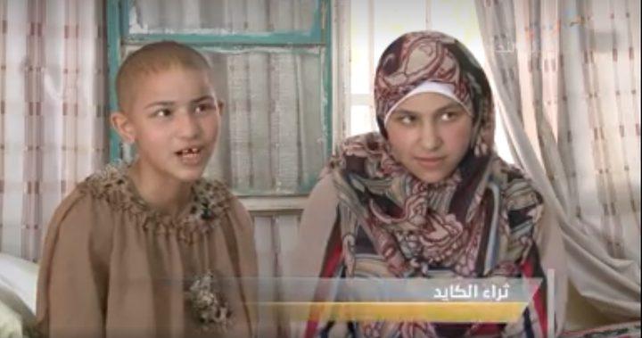 أخوات من قرية بروقين يعانون من مشكلة فقدان شعر