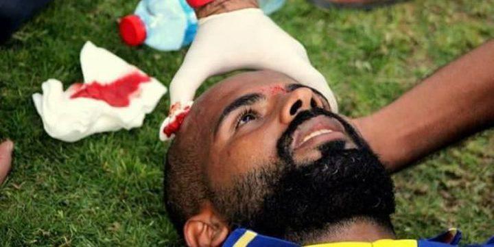 إصابة اللاعب أدهم خطاب بحجر ألقي من الجماهير (صور)