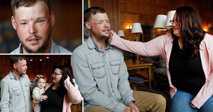 أمريكية تتبرع بوجه زوجها لشاب فقد أجزاء من وجهه