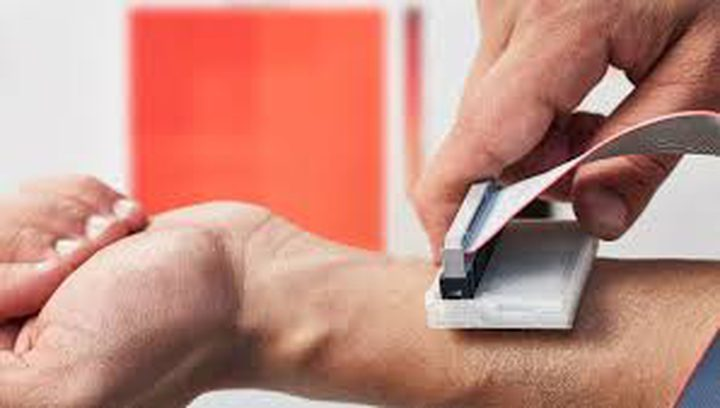 اختراع ثوري للكشف المبكر عن سرطان الجلد