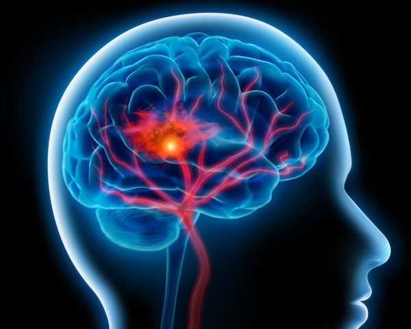 علماء يطورون علاجا للأمراض الدماغية المستعصية