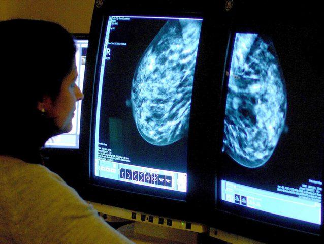 """بريطانيا :دواء """"سيغير حياة"""" مرضى سرطان الثدي"""