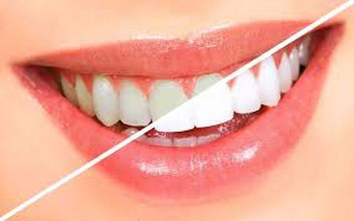 6 طرق لتبييض الأسنان تغنيك عن المعجون