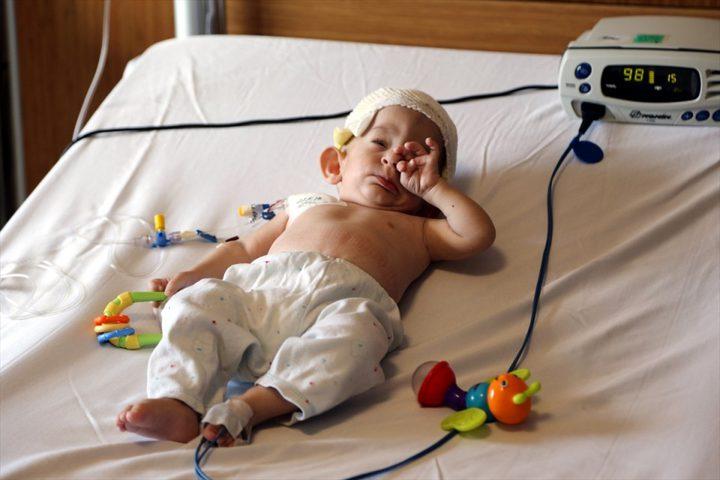 أطباء أتراك ينجحون بمعالجة رضيع سوري يعاني من تشوه في الجمجمة