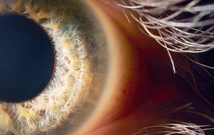 العلاج الجيني لمرض العمى الموروث
