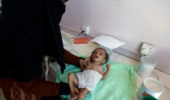 """يونيسيف: أطفال اليمن يواجهون """"ثلاثي"""" مرعب"""