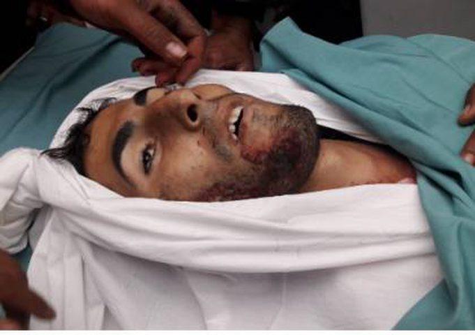 شهيدان وعشرات الإصابات في جمعة الغضب