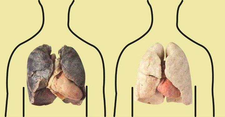 كيف تنظف رئتيك من النيكوتين من آثار التدخين
