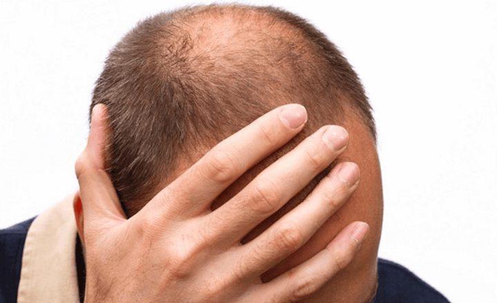علماء : تطوير طريقة لاستنبات الشعر