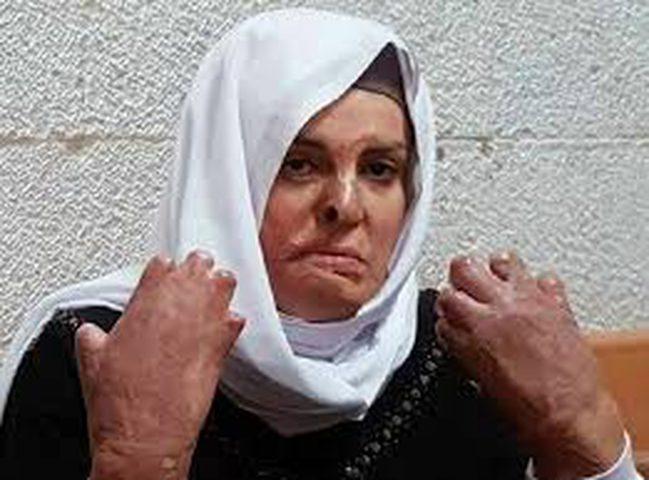 قراقع: إسراء جعابيص ضحية الاهمال الطبي في سجون الاحتلال