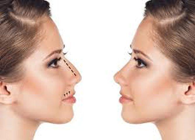 طريقة ثورية لتجميل الأنف بالخيوط دون الجراحة
