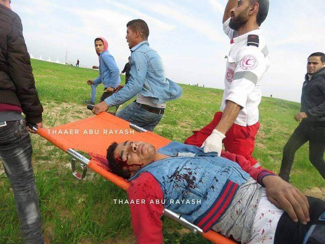 وزارة الصحة تكشف عن 35 إصابة بنيران قوات الاحتلال بينها 19 في قطاع غزة إحداها بحالة الخطر