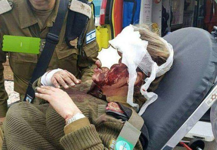 الإحتلال يزعم اصابة مجندة من قواته في القدس