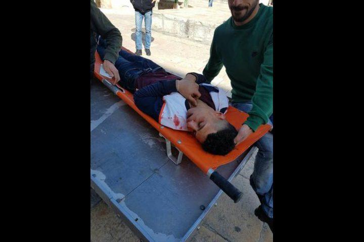نقل شاب تعرض لاعتداء المستوطنين قبل أيام  إلى المستشفى
