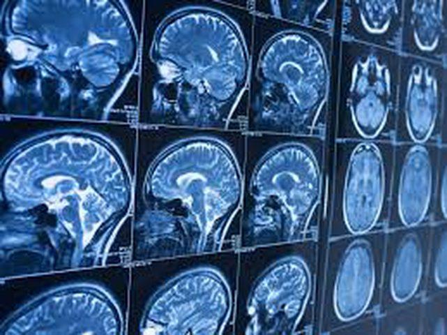 """تلف الدماغ أحد أهم أسباب """"الجرائم العنيفة"""""""
