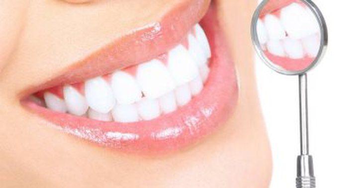 كل ما تريد معرفته عن تسوس الأسنان