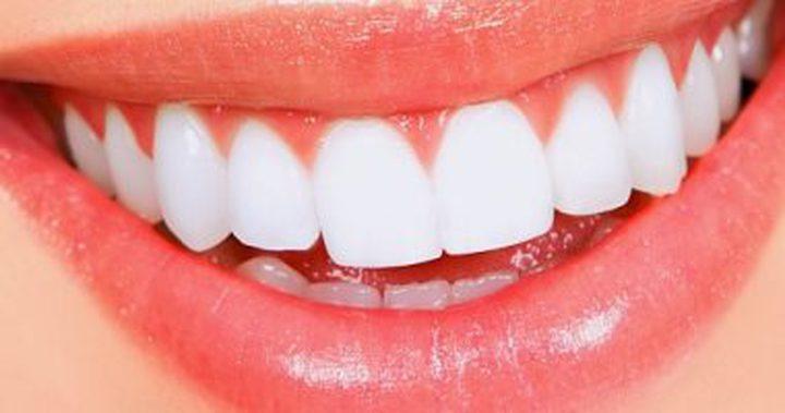 عالج التصبغات على أسنانك بالليزر