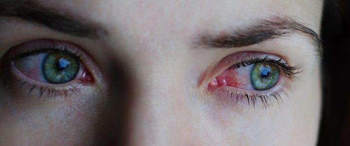 ما هي اسباب احمرار العين ؟