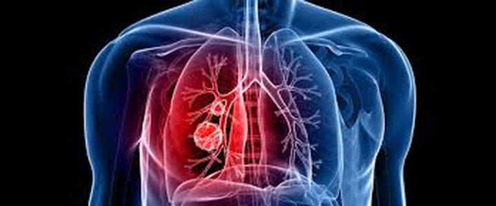 علاج سرطان الرئة بين العمليات الجراحية والعلاج الإشعاعي