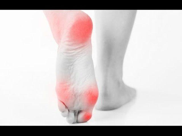 564b799ff الأسباب الأكثر شيوعاً لآلام القدمين!