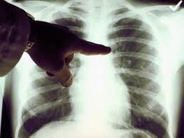 ما هي أعراض سرطان القفص الصدري ؟
