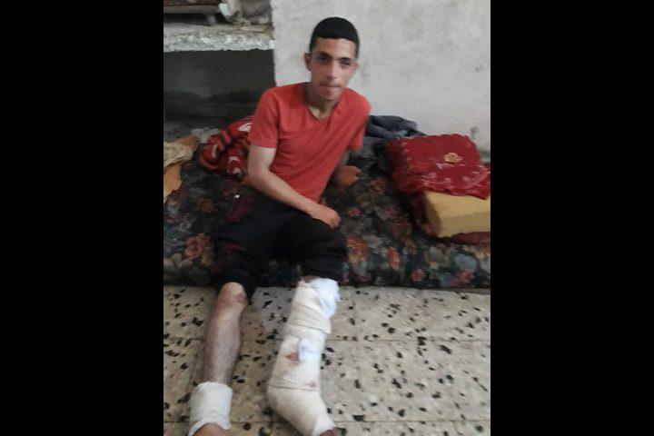 شاب أصيب ثماني مرات ولازال يشارك في مسيرات العودة
