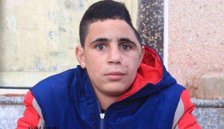 """قوات الاحتلال تختطف الطفل الجريح """"محمد التميمي"""" من النبي صالح"""