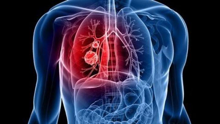 مفاجأة.. فحص دم تجريبي يرصد سرطان الرئة مبكراً