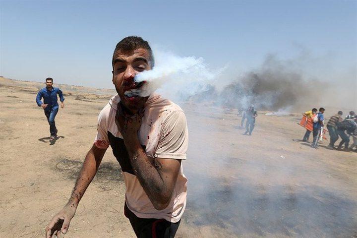 """الكشف عن هوية """"مصاب قنبلة الغاز في وجهه"""" وحالته الصحية"""